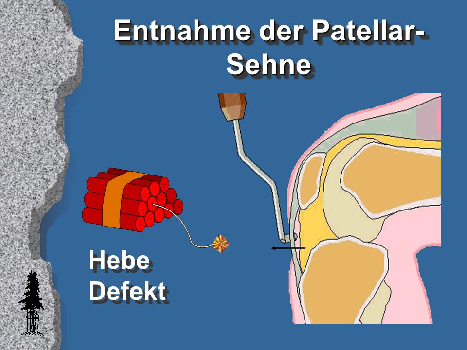 Entnahme der Patellar-Sehne