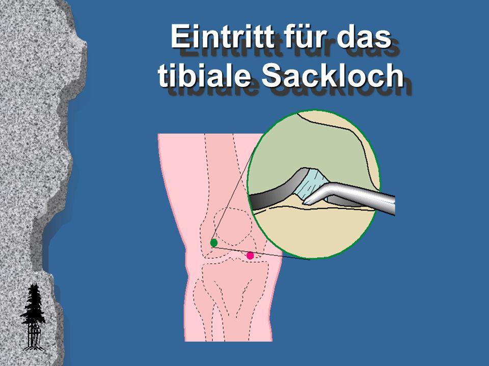 Eintritt für das tibiale Sackloch