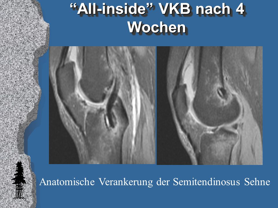 All-inside VKB nach 4 Wochen