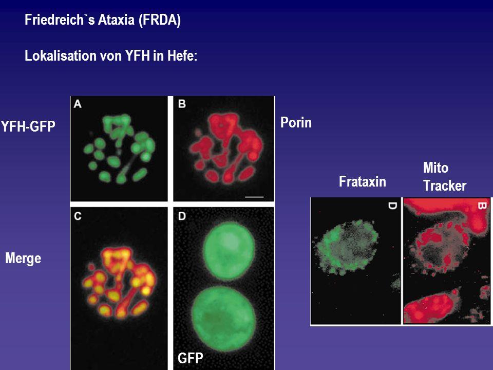 Friedreich`s Ataxia (FRDA)