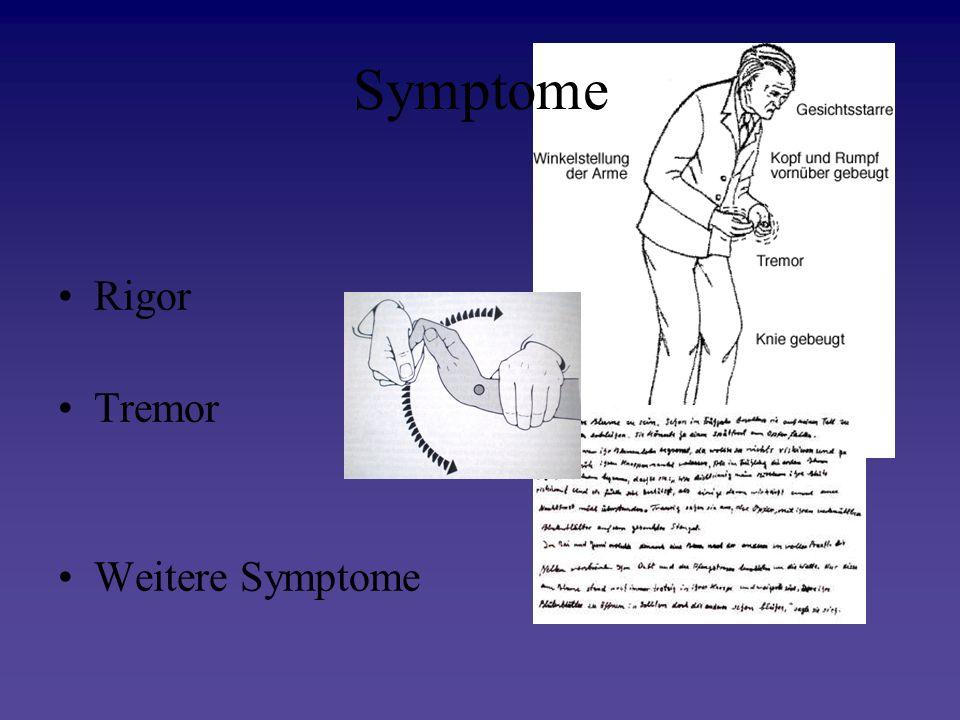 Symptome Rigor Tremor Weitere Symptome