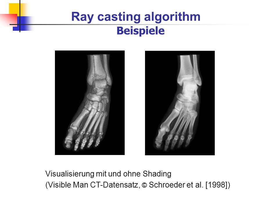 Ray casting algorithm Beispiele Visualisierung mit und ohne Shading