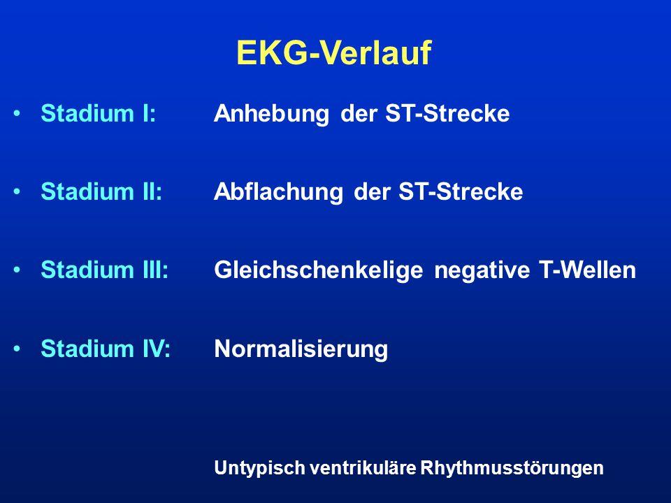 EKG-Verlauf Stadium I: Anhebung der ST-Strecke