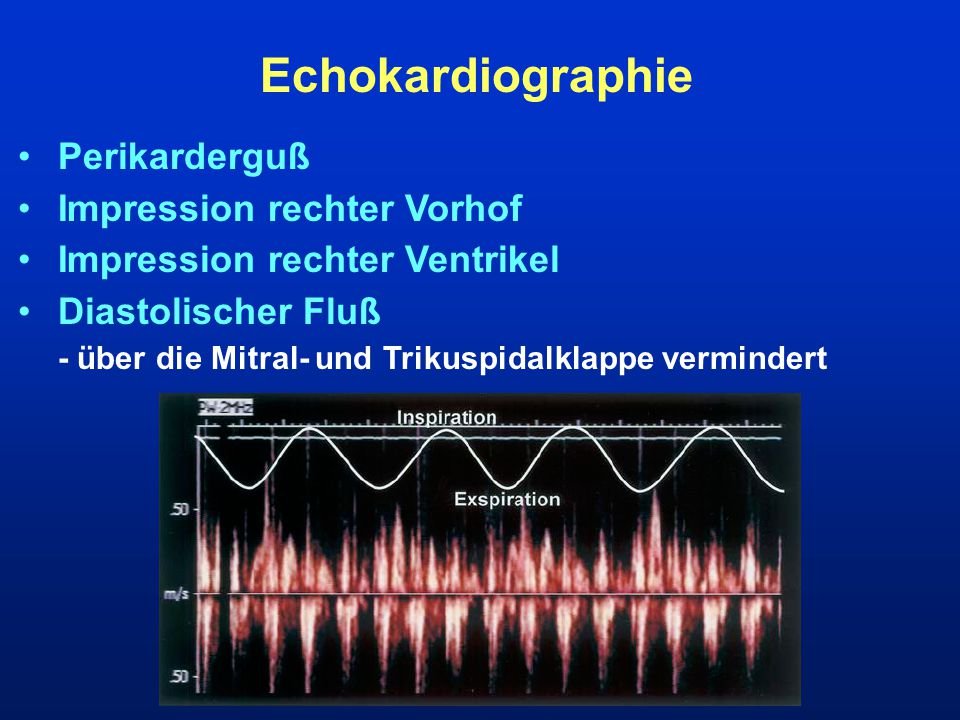 Echokardiographie Perikarderguß Impression rechter Vorhof
