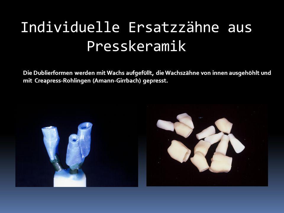 Individuelle Ersatzzähne aus Presskeramik