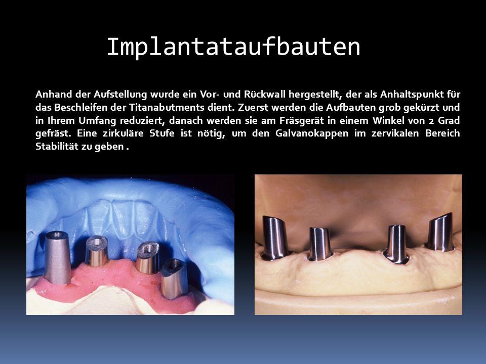 Implantataufbauten