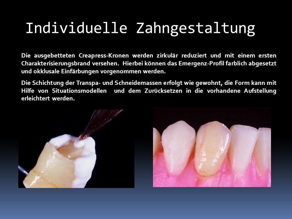 Individuelle Zahngestaltung