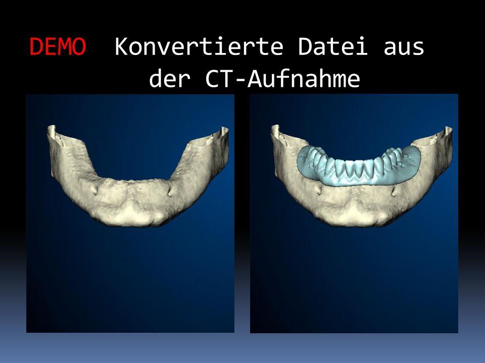 DEMO Konvertierte Datei aus der CT-Aufnahme