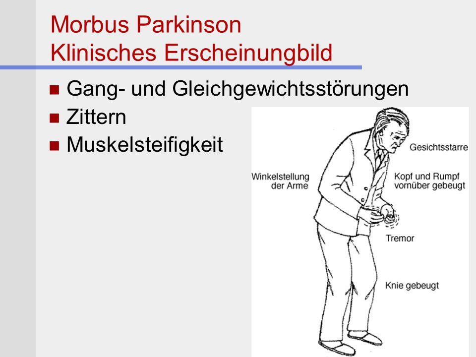 Morbus Parkinson Klinisches Erscheinungbild