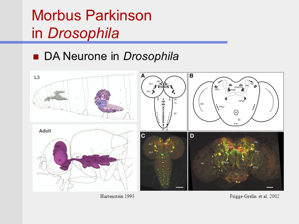 Morbus Parkinson in Drosophila