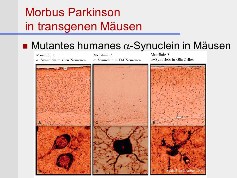 Morbus Parkinson in transgenen Mäusen