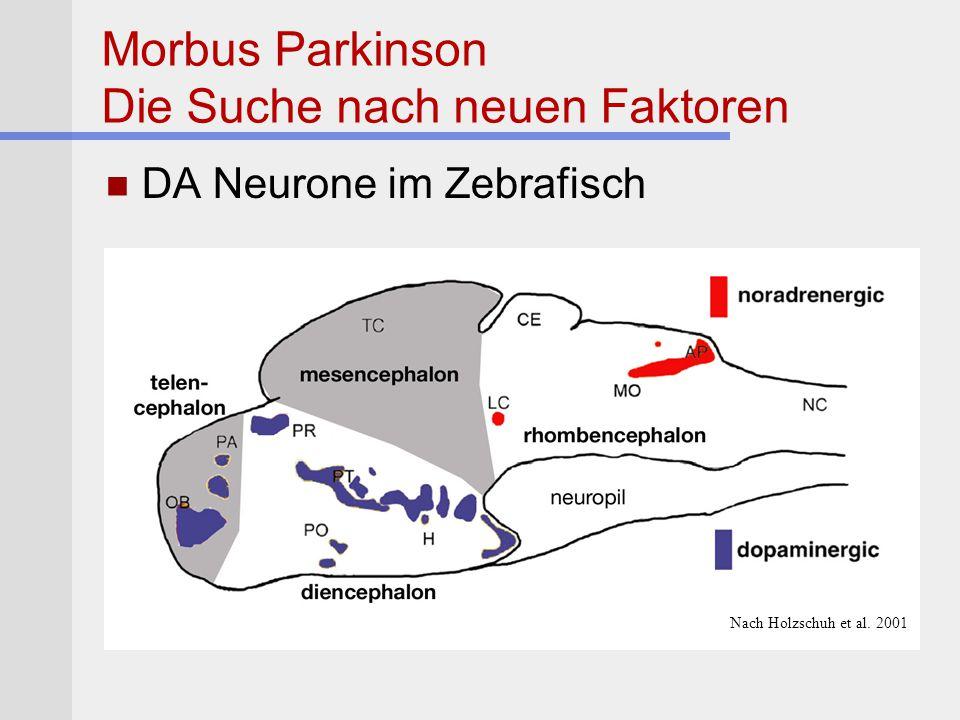 Morbus Parkinson Die Suche nach neuen Faktoren