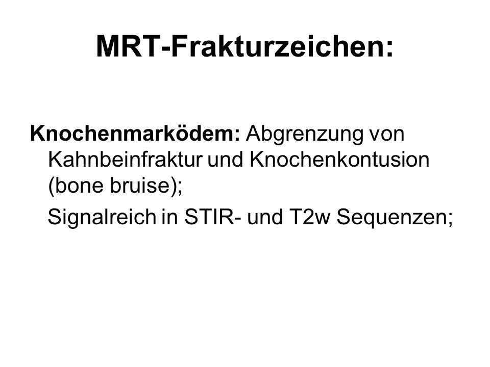MRT-Frakturzeichen: Knochenmarködem: Abgrenzung von Kahnbeinfraktur und Knochenkontusion (bone bruise);