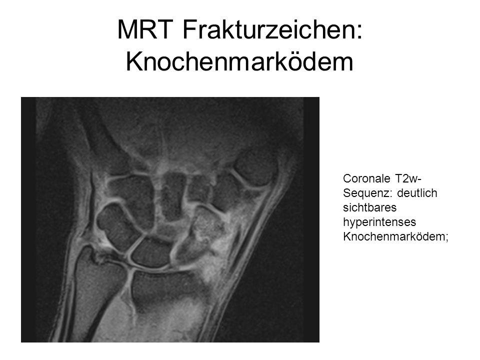 MRT Frakturzeichen: Knochenmarködem