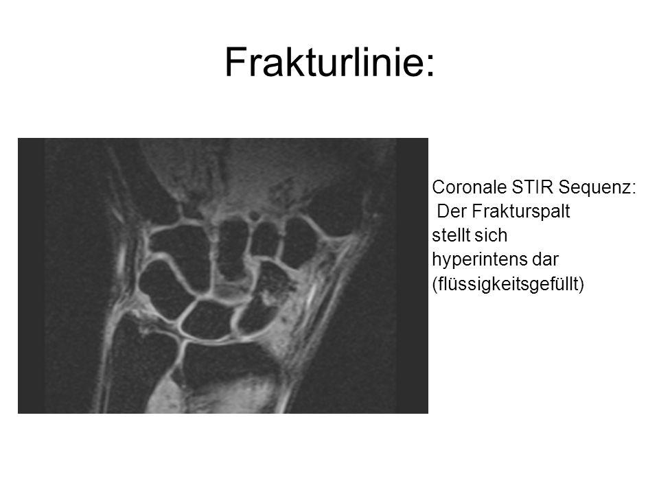 Frakturlinie: Coronale STIR Sequenz: Der Frakturspalt stellt sich