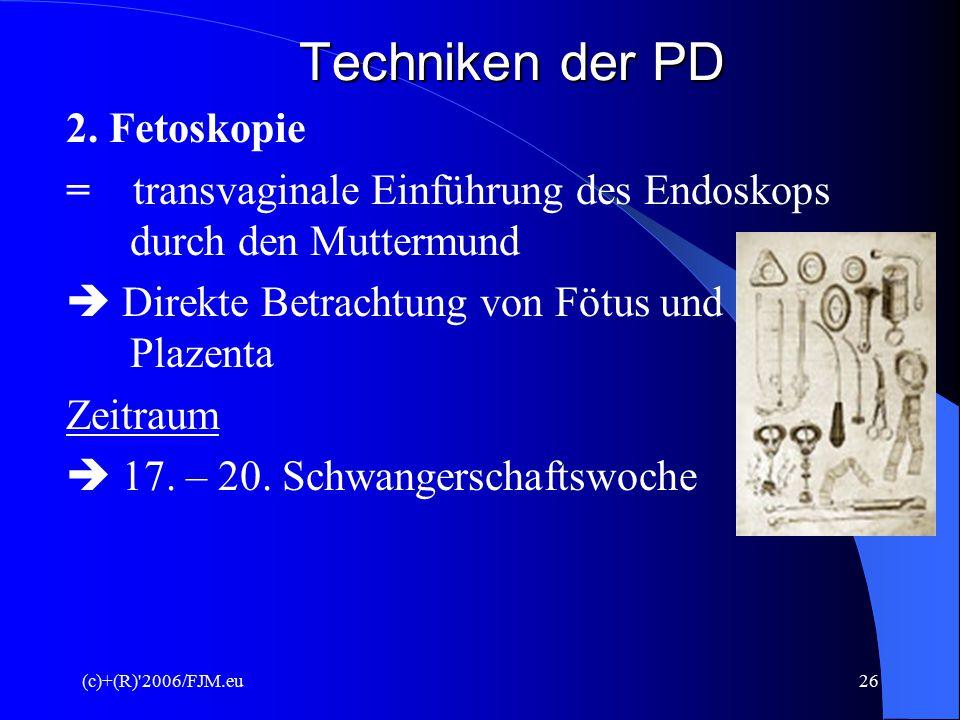 Techniken der PD 2. Fetoskopie
