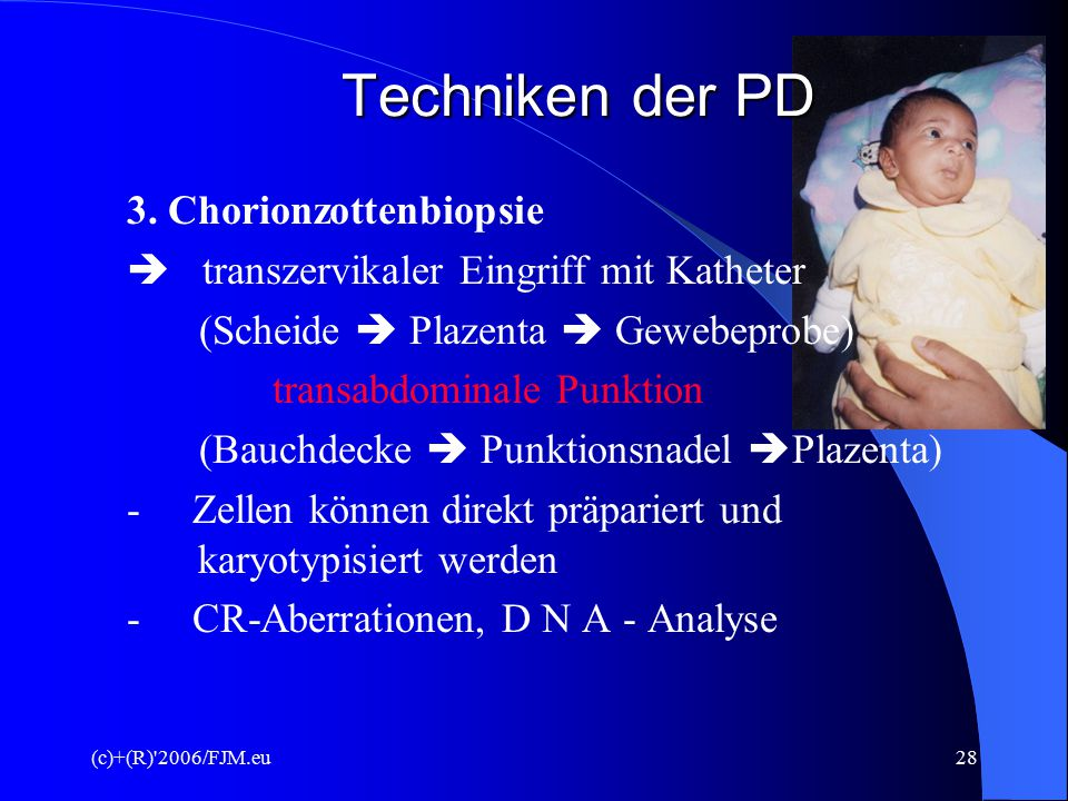 Techniken der PD 3. Chorionzottenbiopsie