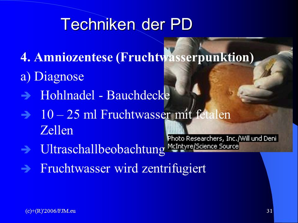 Techniken der PD 4. Amniozentese (Fruchtwasserpunktion) a) Diagnose