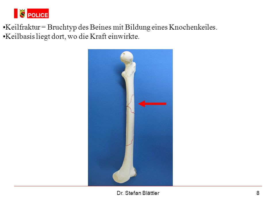 Keilfraktur = Bruchtyp des Beines mit Bildung eines Knochenkeiles.