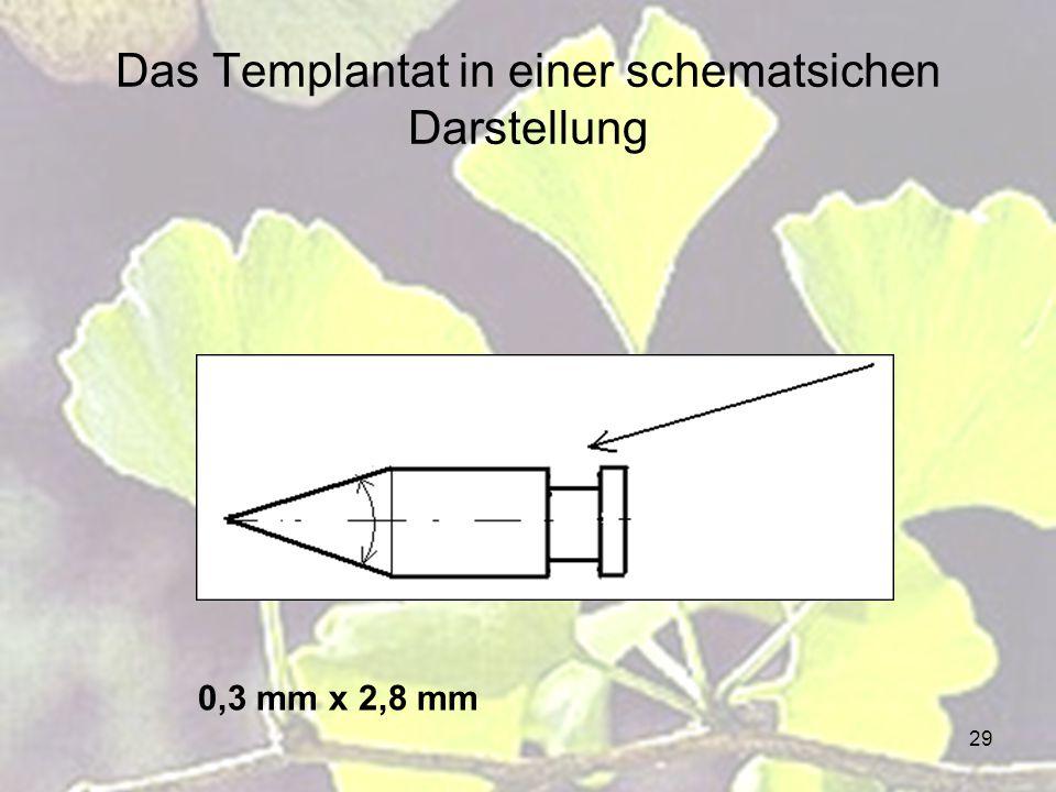 Das Templantat in einer schematsichen Darstellung