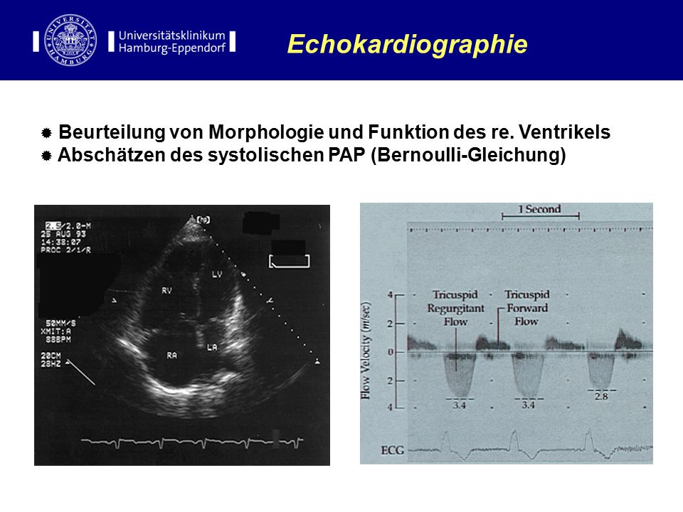 Echokardiographie Beurteilung von Morphologie und Funktion des re.