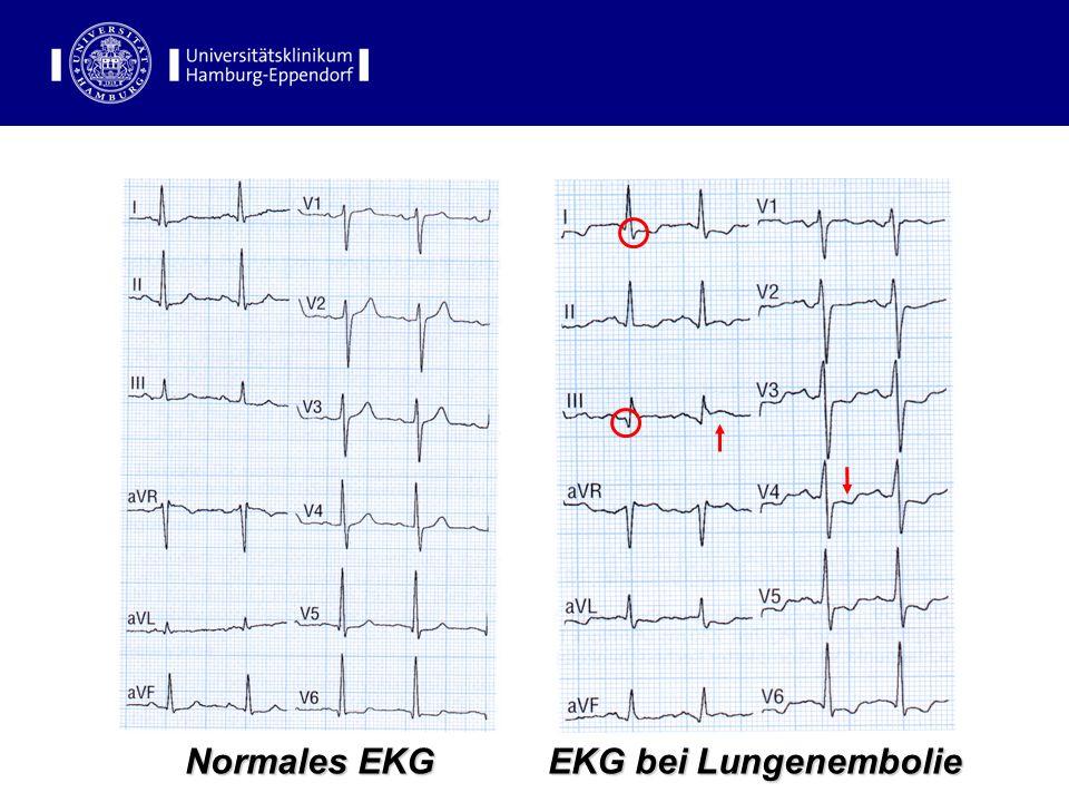EKG-Befunde Normales EKG EKG bei Lungenembolie