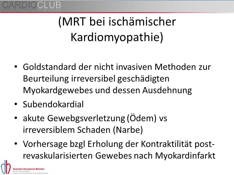 (MRT bei ischämischer Kardiomyopathie)
