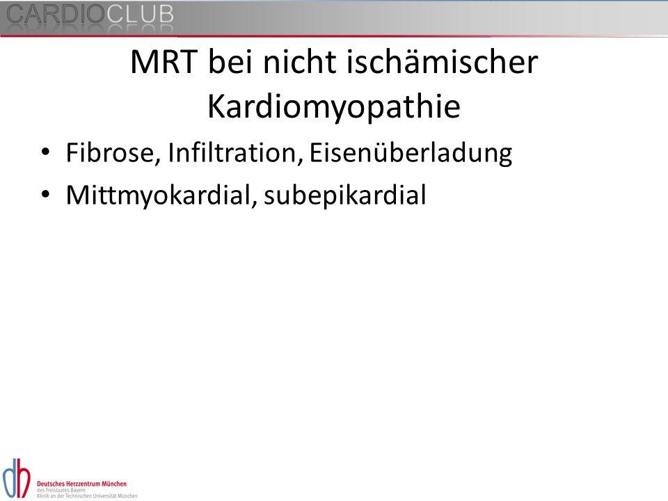 MRT bei nicht ischämischer Kardiomyopathie