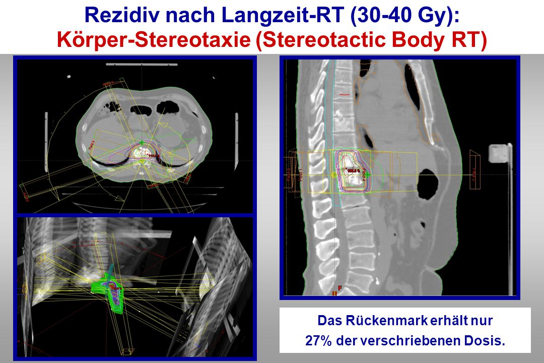 Rezidiv nach Langzeit-RT (30-40 Gy):