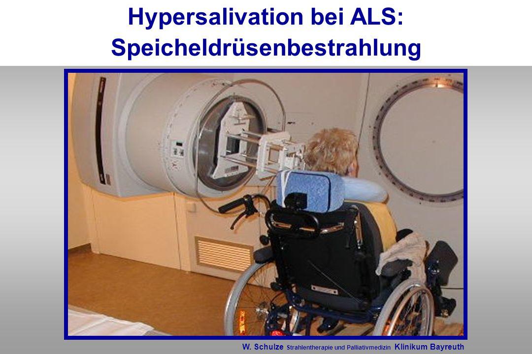 Hypersalivation bei ALS: Speicheldrüsenbestrahlung