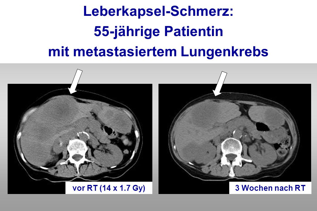 Leberkapsel-Schmerz: mit metastasiertem Lungenkrebs