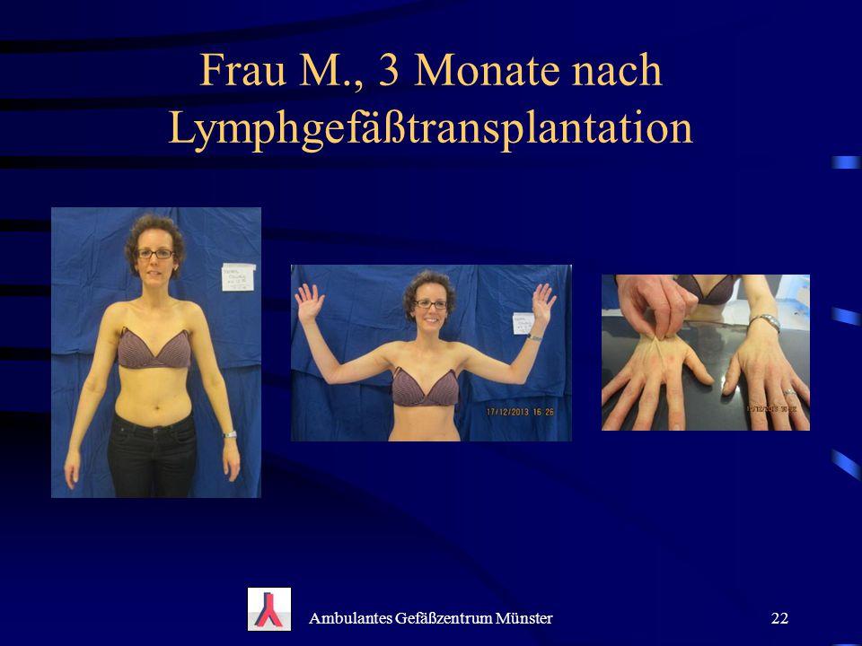 Frau M., 3 Monate nach Lymphgefäßtransplantation