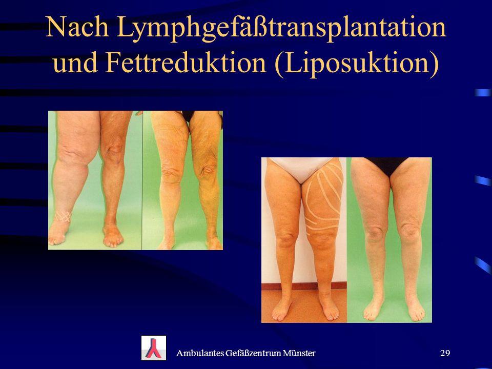 Nach Lymphgefäßtransplantation und Fettreduktion (Liposuktion)