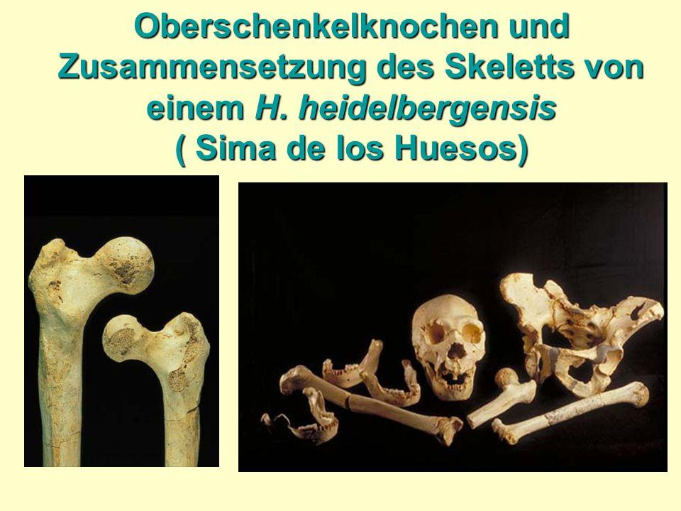 Oberschenkelknochen und Zusammensetzung des Skeletts von einem H