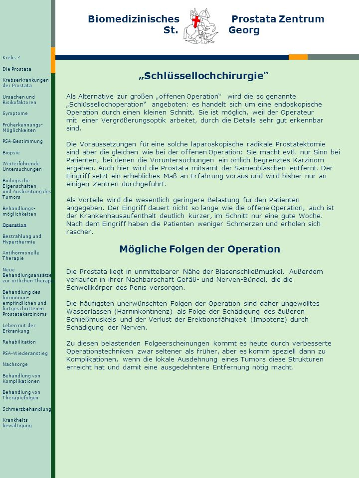 Wie funktioniert die Operation