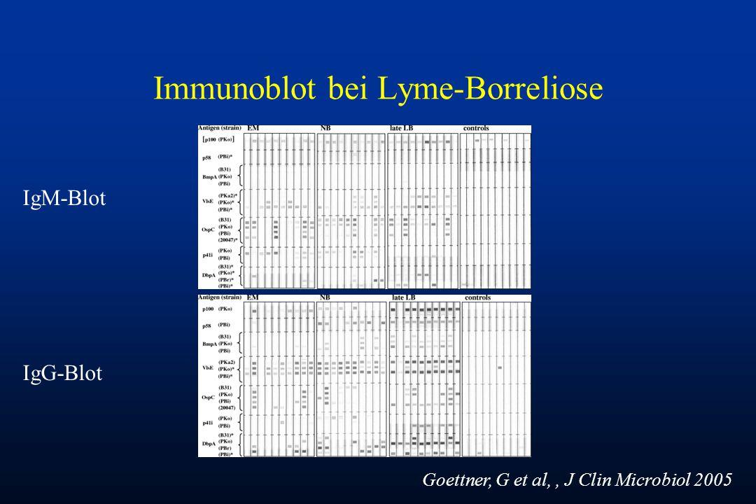 Immunoblot bei Lyme-Borreliose