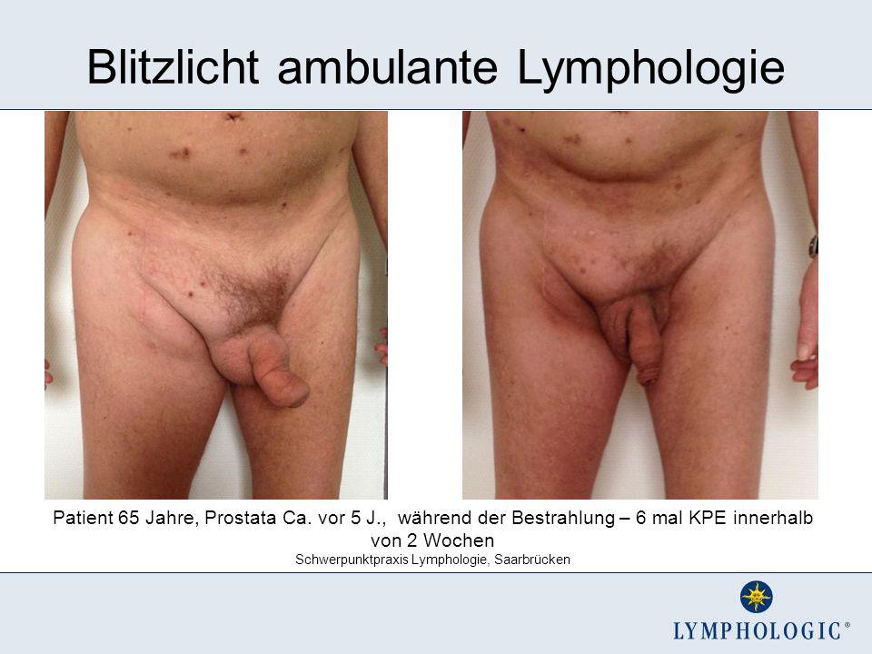 Blitzlicht ambulante Lymphologie