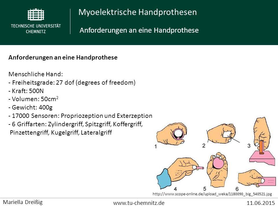 Anforderungen an eine Handprothese
