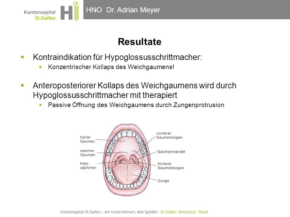 Resultate Kontraindikation für Hypoglossusschrittmacher: