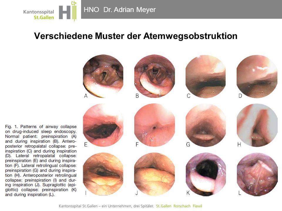 Verschiedene Muster der Atemwegsobstruktion