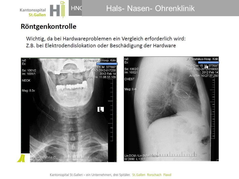 Hals- Nasen- Ohrenklinik