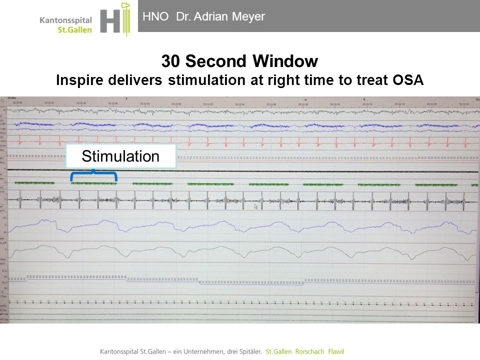 30 Second Window Inspire delivers stimulation at right time to treat OSA