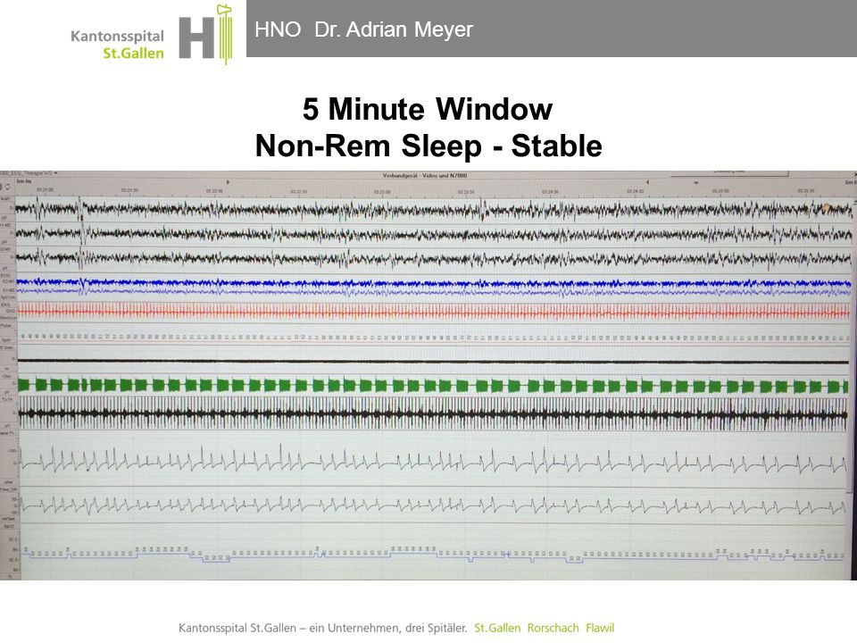 5 Minute Window Non-Rem Sleep - Stable