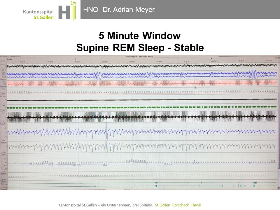 5 Minute Window Supine REM Sleep - Stable