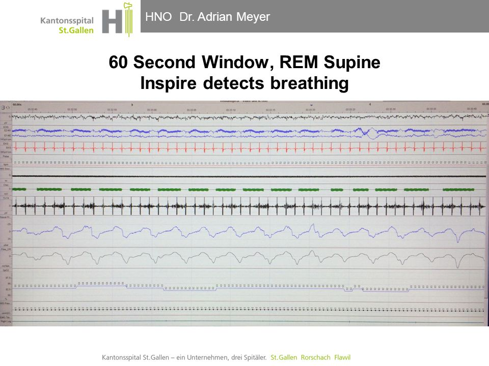 60 Second Window, REM Supine Inspire detects breathing