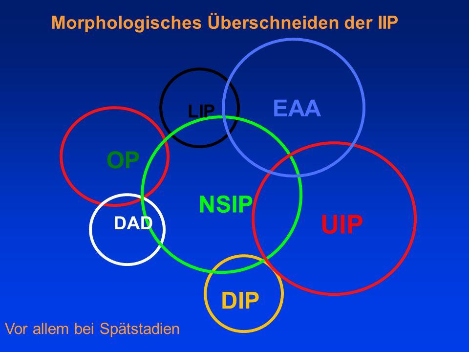 UIP EAA OP NSIP DIP Morphologisches Überschneiden der IIP LIP DAD