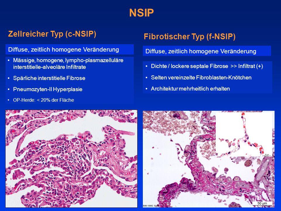 NSIP Zellreicher Typ (c-NSIP) Fibrotischer Typ (f-NSIP)