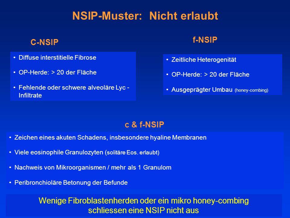 NSIP-Muster: Nicht erlaubt