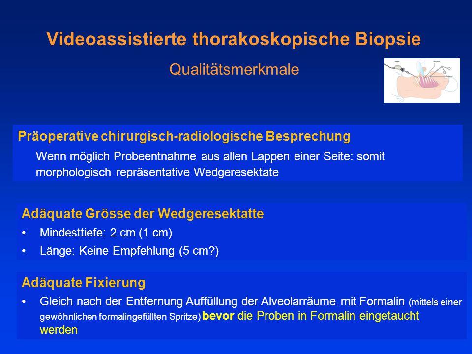 Videoassistierte thorakoskopische Biopsie Qualitätsmerkmale