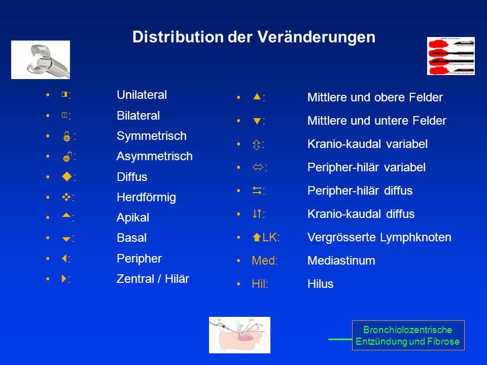 Distribution der Veränderungen